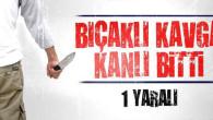 Aksaray'da bıçaklı kavga: 1 yaralı