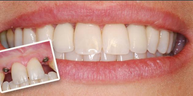 İmplant Diş Fiyatları Kaç Lira