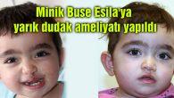 Minik Buse Esila'ya yarık dudak ameliyatı yapıldı