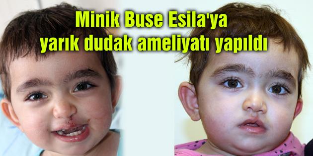 minik-buse-elisa-yarik-dudak-ameliyati