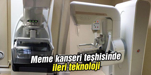 Meme kanseri teşhisinde ileri teknoloji