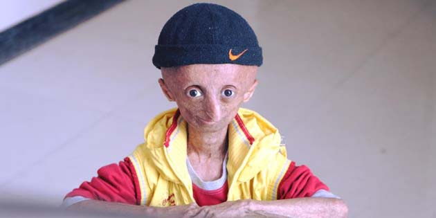 Çocuk yaştaki bireylerin erken yaşlanması durumu: Progeria