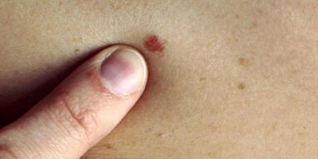 Deri tümörlerine dikkat