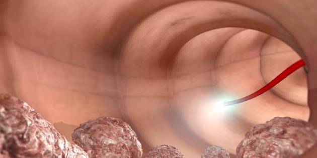 Pandemi, kolon kanserinde erken tanıyı engelliyor