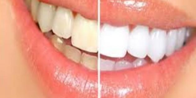 Dişlerde renk değişikliğine dikkat
